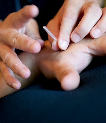 Acupuncture douleur
